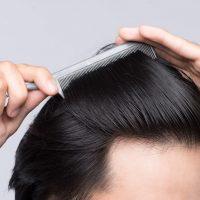 Μεταμόσχευση μαλλιών, όσα πρέπει να γνωρίζετε